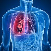 Как лечить бронхит при онкологии -