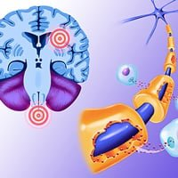 Очаги демиелинизации головного мозга на мрт