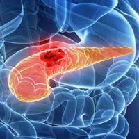 Как быстро развивается рак поджелудочной железы