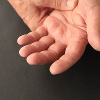 Тремор рук - причины, симптомы, диагностика и лечение дрожания рук