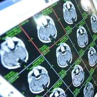 Центр рассеянного склероза в Москве: эффективное лечение склероза