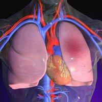 Жидкость в легких при онкологии: причины появления, симптомы, откачка жидкости из легких при раке