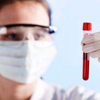 Что такое ревматоидный фактор в крови и о чем это может рассказать