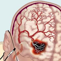 Острое нарушение мозгового кровообращения реабилитация