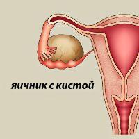 Лечение кисты яичника медикаментозно: свечи, противозачаточные и гормональные таблетки и показания к ним, консервативное лечение кисты яичника в Москве