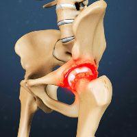 Воспаление суставной сумки лечение тазобедренного сустава