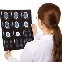 Ишемический инсульт правой стороны головного мозга: сколько живут
