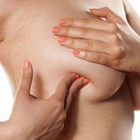 Как распознать рак груди