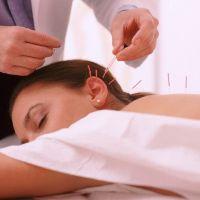 Как работает иглоукалывание (Иглорефлексотерапия) при остеохондрозе шейного отдела позвоночника