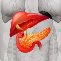 Опухоли поджелудочной железы - причины, симптомы, диагностика и лечение