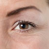 Миастения, глазная форма заболевания: общие понятия, рекомендации по лечению и профилактике