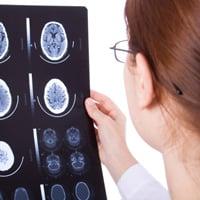 Транзиторная ишемическая атака (ТИА): причины, симптомы, диагностика. Лечение ТИА в Москве