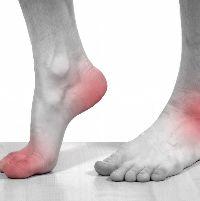 Полинейропатия нижних конечностей симптомы - Всё о неврологии