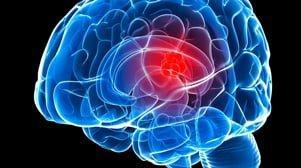 Менингиома головного мозга, симптомы, лечение
