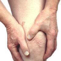 Лечение псориатического артрита в москве