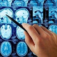 Виды ишемического инсульта головного мозга