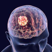 Глава 16. Эпилепсия и судорожные состояния.
