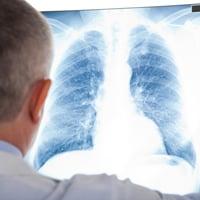 Воспаление легких после лучевой терапии