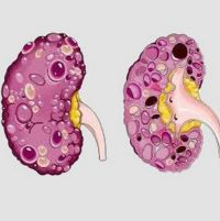 Киста почки: диагностика, причины появления, лечение почек от кисты