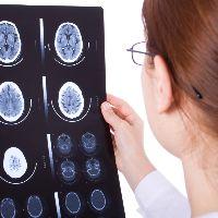Опухоль головного мозга - лечение рака головного мозга в Москве