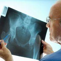 Вывих тазобедренного сустава у взрослых лечение
