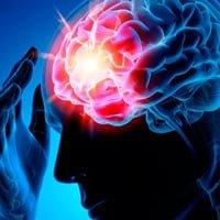 Ишемический инсульт левого полушария головного мозга