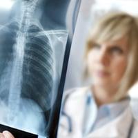 Диагностика рака легких на ранних стадиях, методы диагностики рака легких