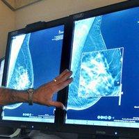 Симптом рака молочной железы №1, о котором Вы должны знать