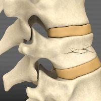 Перелом позвоночника: лечение и реабилитация после компрессионного перелома в грудном и поясничном отделе позвоночника в Москве