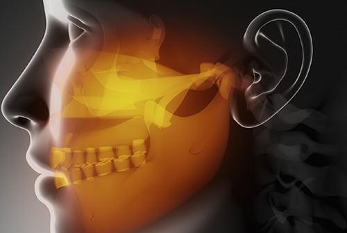 Дисфункция височно-нижнечелюстного сустава. Причины и последствия дисфункции височно-нижнечелюстного сустава