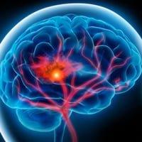 Атака ишемическая транзиторная