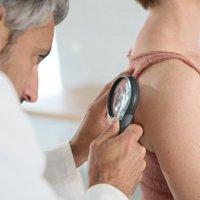 Лимфома кожи: симптомы, фото новообразования, виды, причины Т-клеточной лимфомы кожи, диагностика и лечение в Москве