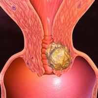 Саркома матки: симптомы и признаки, прогноз, лечение