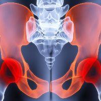 Воспаление тазобедренного сустава: причины, симптомы и лечение. Диагностика и лечение заболеваний тазобедренного сустава в Москве