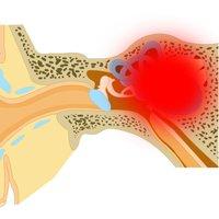 Болезнь меньера симптомы лечение - Всё о неврологии