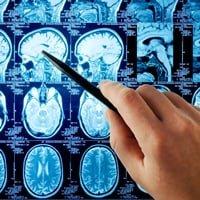 Как диагностировать инсульт