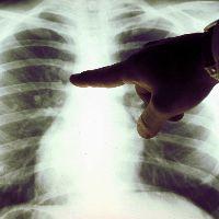 Рак легких: симптомы на ранних стадиях, онкология легких - признаки болезни, как определить рак легких