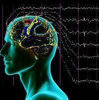 Энцефалограмма головного мозга заключение
