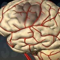 Ишемический инсульт правого полушария головного мозга