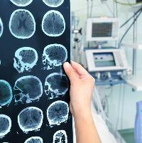 Менингиома лечение лучевой терапией