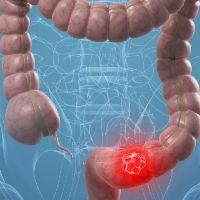 Рак прямой и толстой кишки – симптомы признаки стадии диагностика и лечение