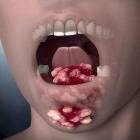 Рак языка симптомы