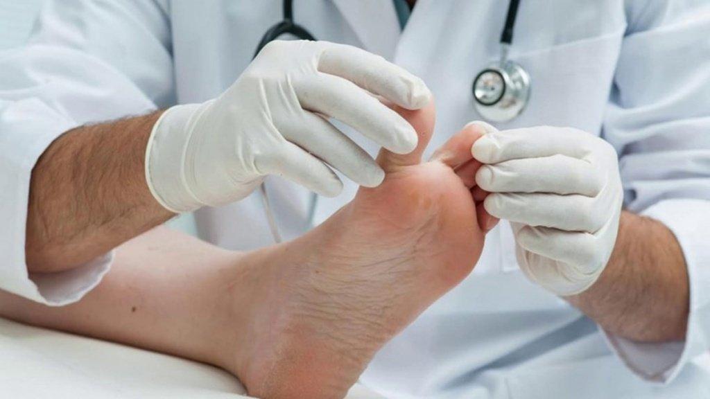 Меланома на ноге