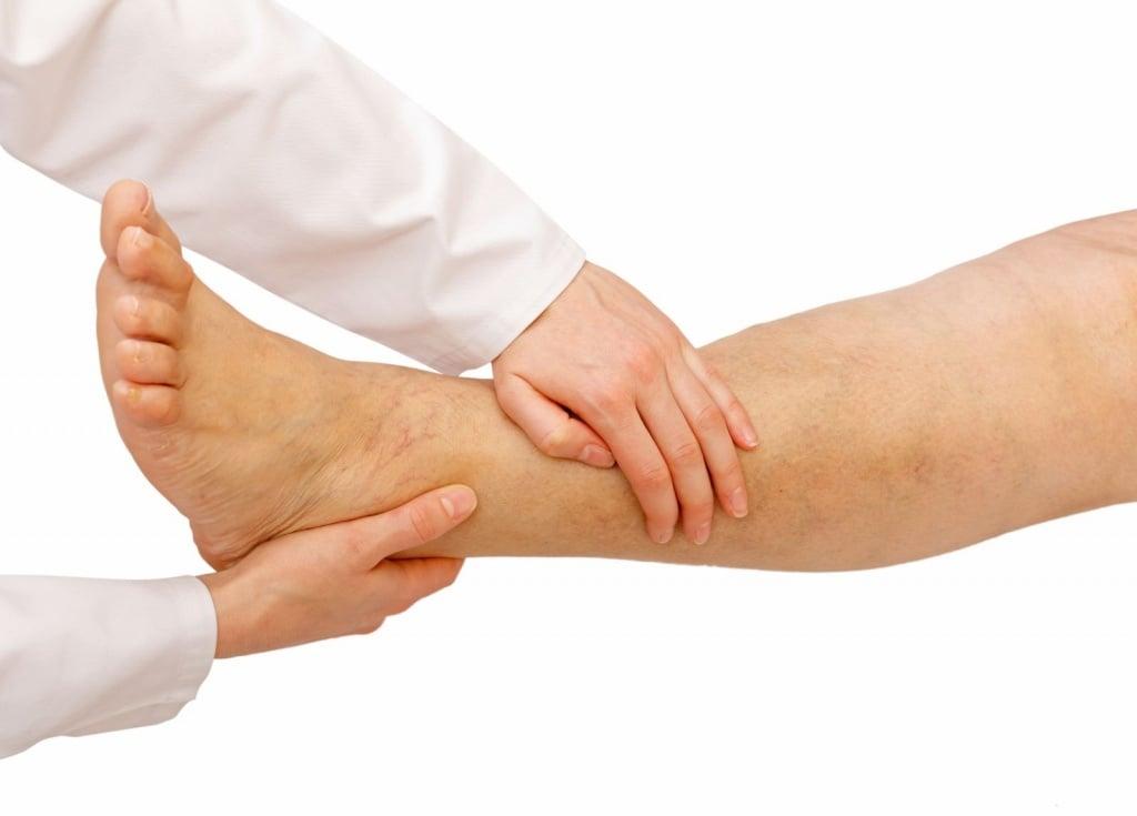 Скачать реферат по заболеваниям нижних конечностей