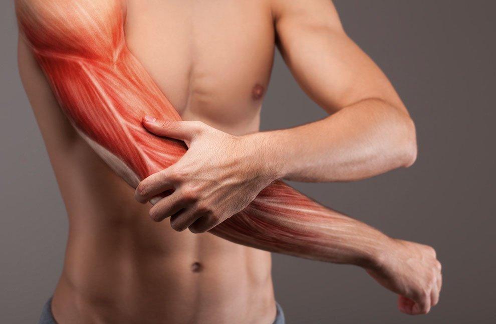 Причины и лечение мышечных болей в руках