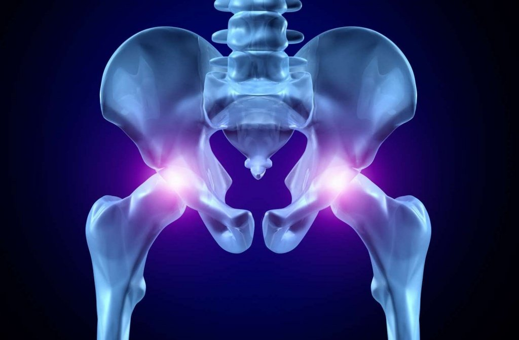 Эндопротез тазобедренного сустава: цена