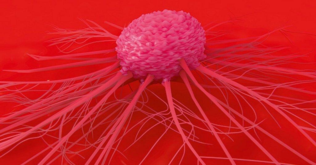 Рак 1 стадии молочной железы процент излечения 28