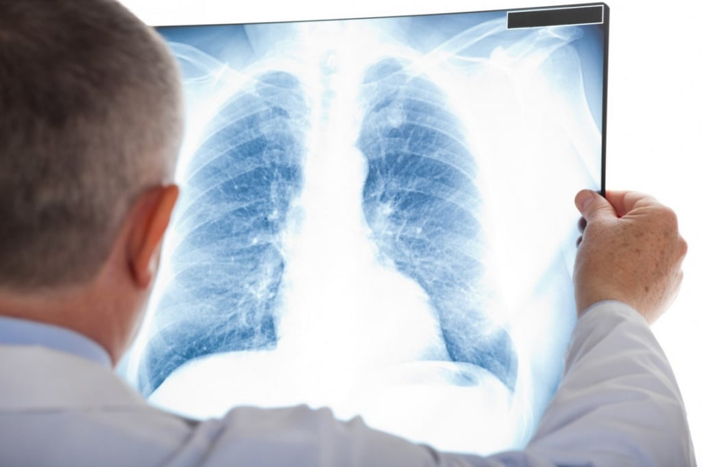 Плеврит на фоне онкологии