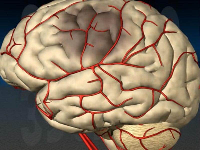 Инсульт правого полушария головного мозга