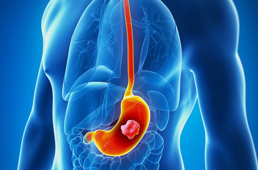 Рак желудка: симптомы и лечение